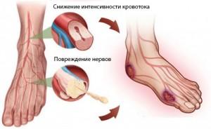 diabeticheskaja-stopa-2